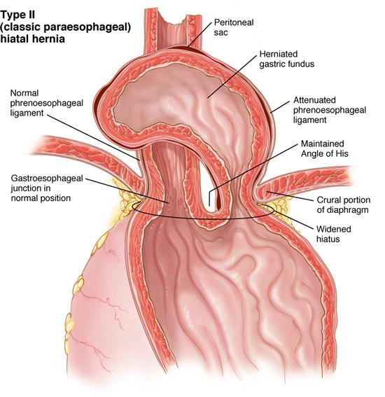 Reflujo gastroesofágico mejor por laparoscopia