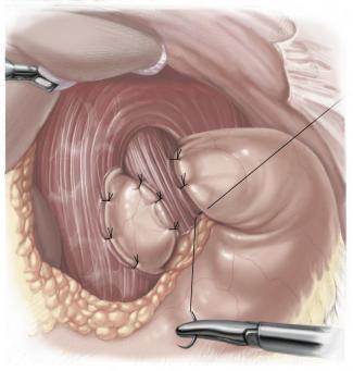 técnica Reflujo gastrico laparoscopia