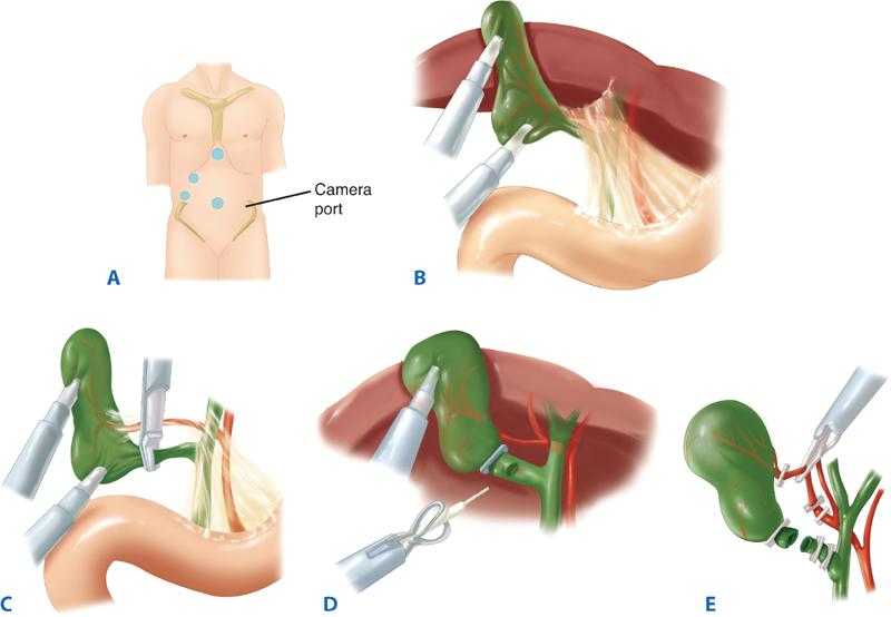 Cirujano Colecistectomia laparoscopica Sevilla Sin cicatriz