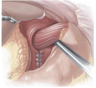 Hernia de hiato y reflujo gastoesofagico