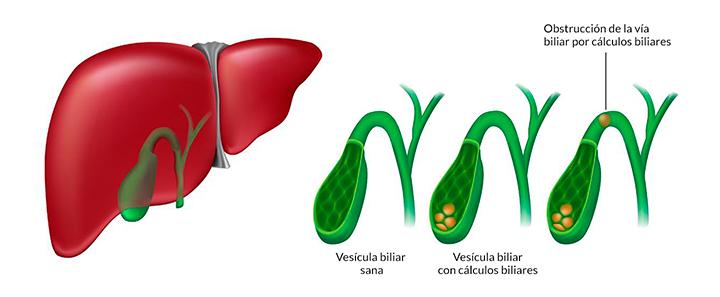 Piedras en la vesícula biliar cálculos en la vesícula Colecistectomía sin cicatriz